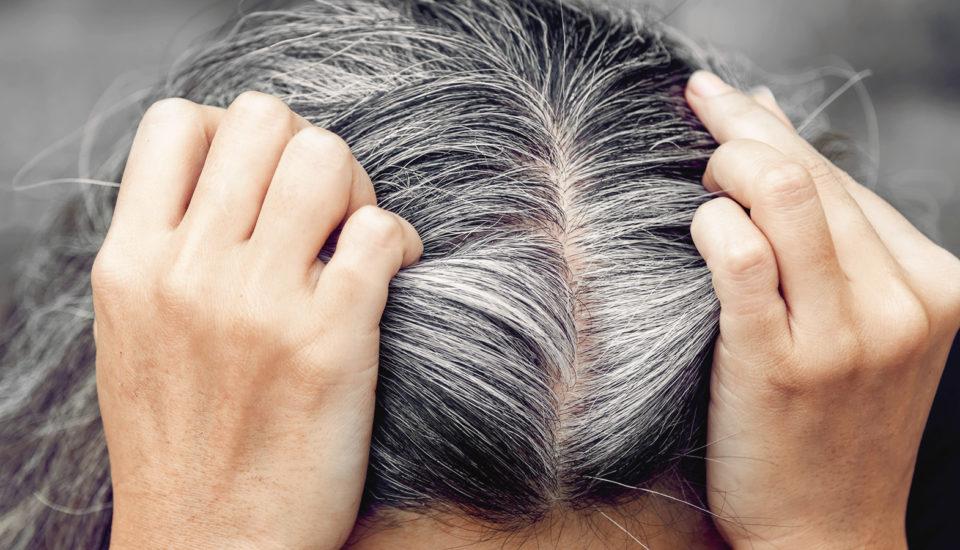 Mám 30 asom šedivá. Prečo vlasy strácajú pigment ačosa stým dá robiť?